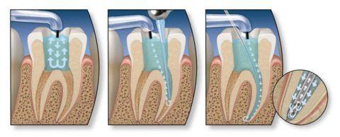 Плохо вылеченные зубы могут стать причиной боли