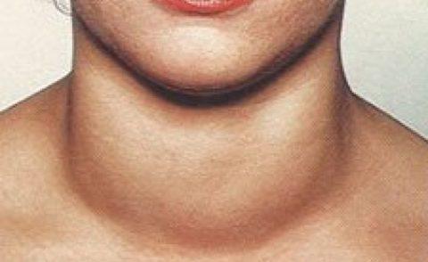 Увеличенная щитовидная железа при недостаточном содержании йода в продуктах