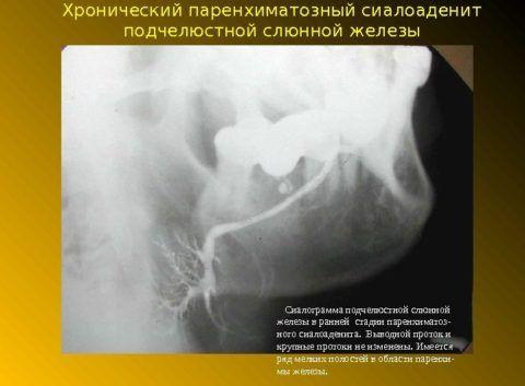 Сиалограмма при хроническом сиалоадените паренхиматозного типа
