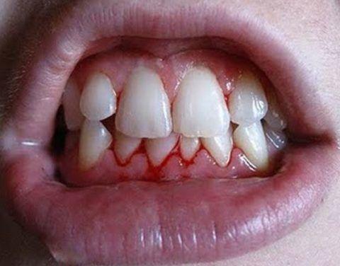 Полоскание рта при воспалении десен поможет убрать кровоточивость