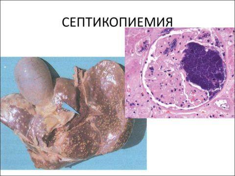 Поражение инфекцией структуры органа.