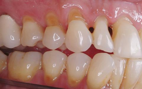 Клиновидные дефекты верхней и нижней челюсти с правой стороны.