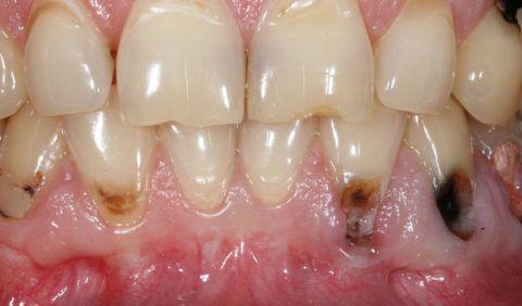 При локализованной форме рецессии происходит развитие кариеса корня на фоне общей неблагоприятной ситуации в полости рта.