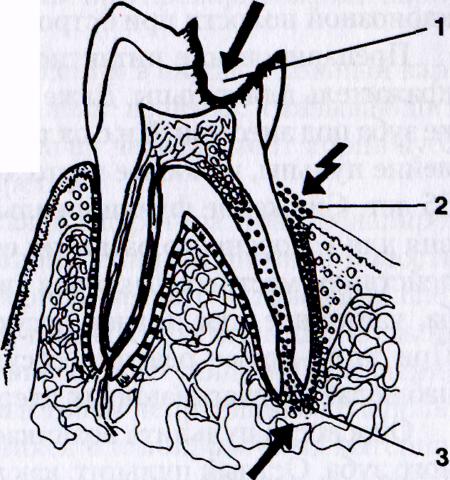 Стрелочками показаны способы проникновения инфекции, обуславливающие развитие как пульпита, так и периодонтита.