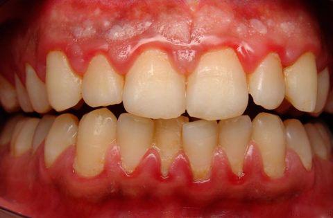 Ответная реакция организма при локализованной форме патологии в виде развития катаральной формы гингивита.