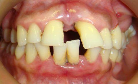 Появление мобильности зубов при переходе патологии в пародонтит.