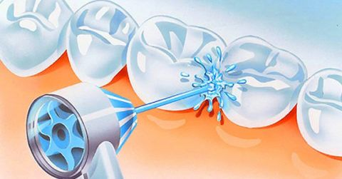 Ультразвуковое очищение зубов