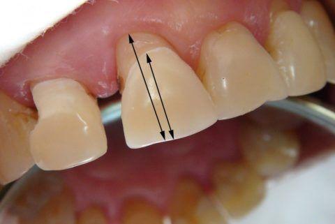 Из-за смещения десны наблюдается увеличение длины зуба