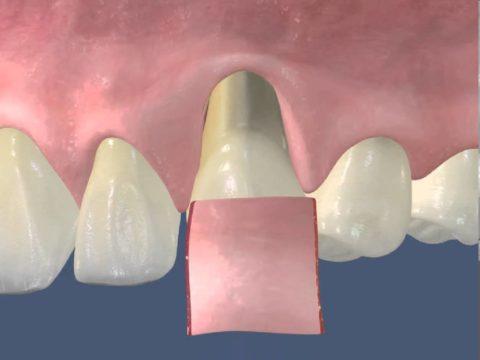 Одним из методов хирургического лечения является пластика десны