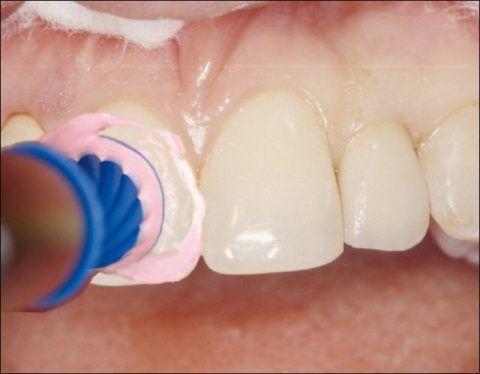 Обработка зубов при помощи дисков