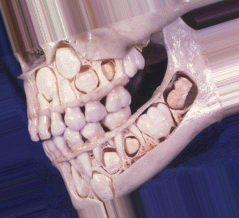 Закладка постоянных и молочных зубов
