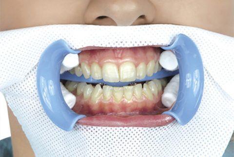 Ватные тампоны с лекарственным веществом в полости рта