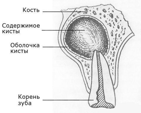 Схематическое изображение расположения патологического образования.