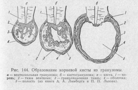 Гистологическое строение деструкций, связанных с корнем зуба.