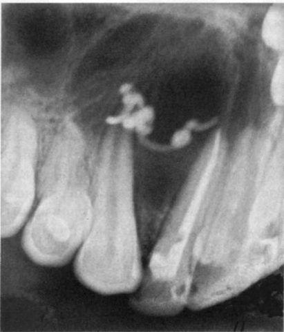 Возникновение на фоне вывода пасты за апикальную область зуба.