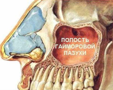Положение верхнечелюстного синуса относительно зубной дуги.