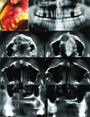 Вид образования в полости рта и на снимках, на которых видно оттеснение дна пазухи.