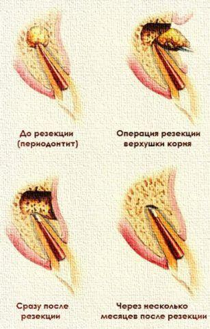 Этапы цистэктомии.