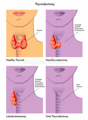 Тиреоидэктомия