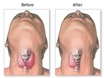 Фото до и после удаления доли щитовидной железы