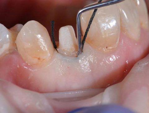 Процесс подготовки к изготовлению одиночной коронки на нижней челюсти.