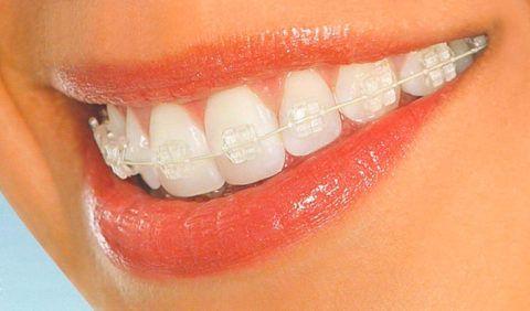 Сияние искусственных кристаллов – дополнительная «изюминка» вашей внешности