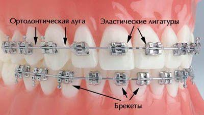 Современные ортодонтические аппараты можно использовать в любом возрасте