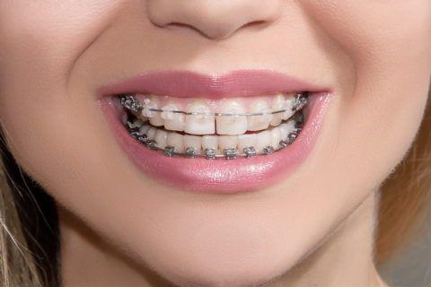 Использование системы только на передних зубах позволит снизить стоимость лечения