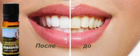Сравнение цвета зубов до и после отбеливания маслом чайного дерева