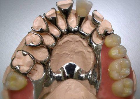 Внешний вид бюгельного протеза для верхней челюсти, расположенный на гипсовой модели.
