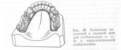 Комбинированный вариант ортопедических креплений.