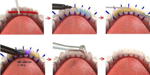Этапы установки стекловолокна для иммобилизации зубов.