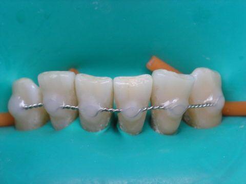 Вестибулярное наложение с закрытием по зубу световым материалом.