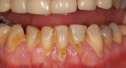 Обильный зубной налет