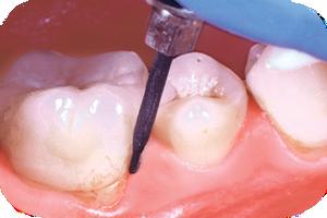 Кариес в области разделения корней жевательного зуба
