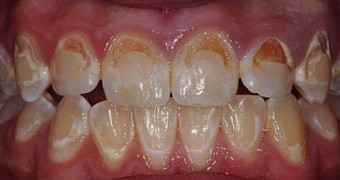 Бактериальный налет на вестибулярной поверхности зубов