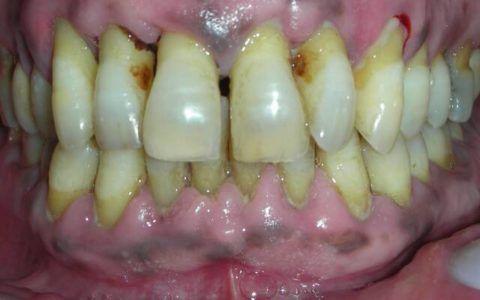 Атрофия десневого края в области передней группы зубов