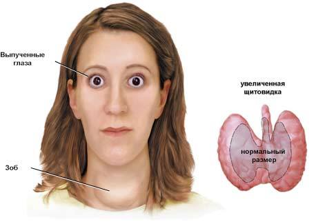 Грейвса синдром: специфическое пучеглазие