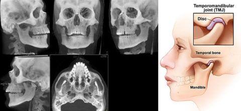 МР-снимки челюстного сустава с разных ракурсов