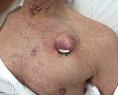 Вживленный кардиостимулятор