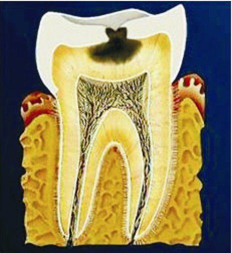 Расположение среднего кариеса и вызываемая им симптоматика зависит от поражения эмали и дентина.