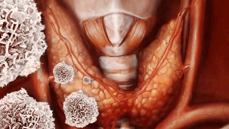 Если в организме имеются антитела к клеткам щитовидной железы, то высоки риски развития тиреоидита Хашимото