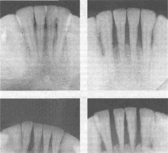 Резорбция челюсти