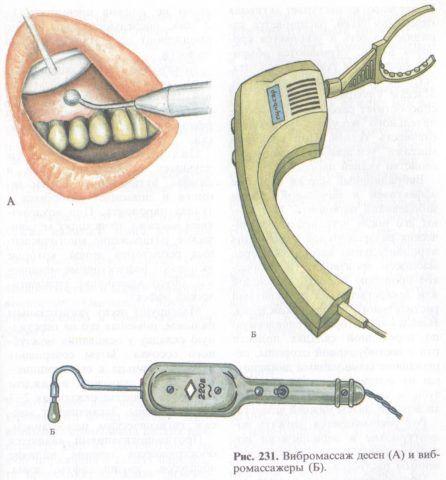 Аппаратура для проведения магнитотерапии пародонта