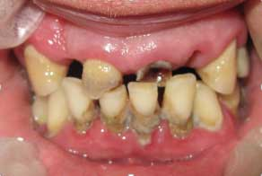 Травматическое смыкание зубов