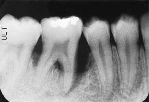 Рентгенологический снимок – резорбция челюсти