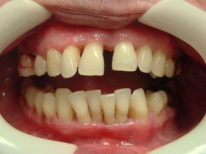 Оголение передней группы зубов