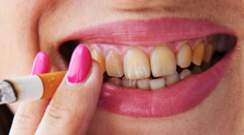 Курение негативно сказывается на здоровье зубов и ротовой полости