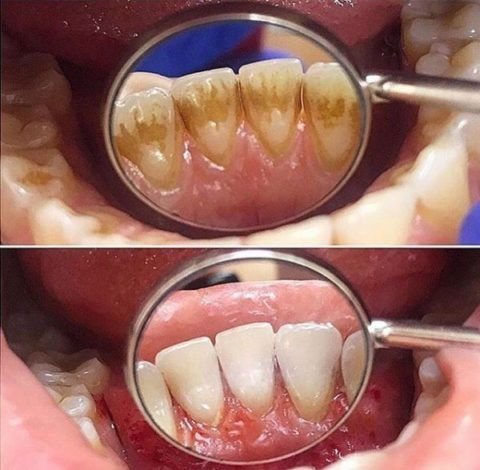 Сравнение зубов курильщика и человека не имеющего такой вредной привычки