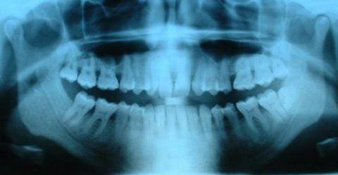 Ортопантомограмма - снимок, полученный при панорамной рентгенографии челюстей и зубов